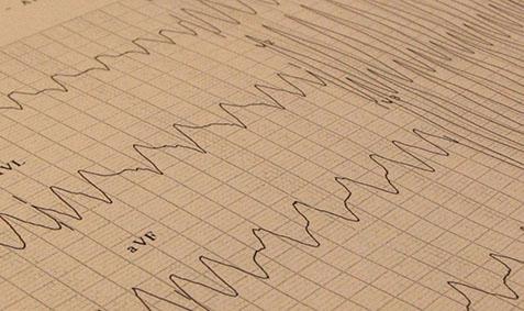 symptomen snelle schildklier